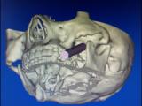 我院外三科科成功完成3D打印导板辅助定位下三叉神经半月节经皮射频热凝术